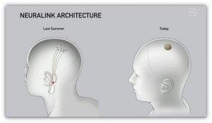 Gli impianti cerebrali che cambieranno l'umanità